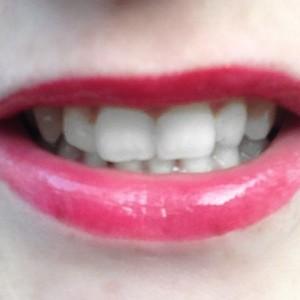 fluidstick smile