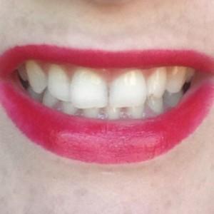 ruby smilePG