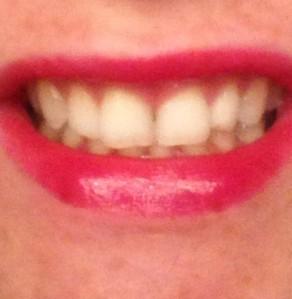 sorbet smile