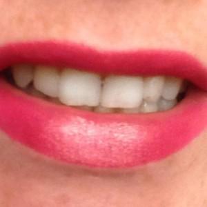 dazzle smile