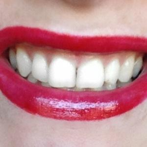 RDR smile